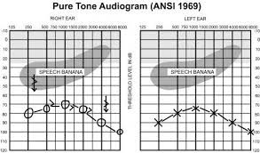 Hearing Banana Chart What Is An Audiogram Canadian Hearing Society
