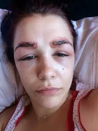 аллергия на хну для бровей видео инструкция по лечению своими