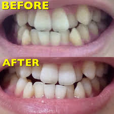 30までにしたいこと②歯編一度でもこの白さ安い痛みなし短時間で