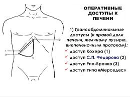 Жить Здорово Камни в желчном пузыре Ультразвуковая диагностика при циррозе печени реферат