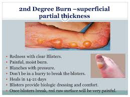 pain medicine for 2nd degree burns