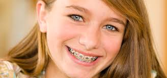Braces from Pan Dental Care in Melrose, MA