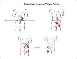 Lower Back Pain Trigger Points