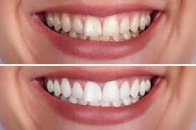 Bleaching   professionelle Zahnaufhellung beim Zahnarzt in München