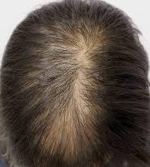 donovan hair clinic