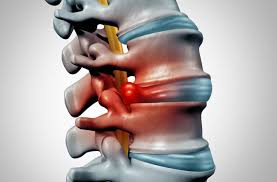 Herniated Disc - Symptoms and Causes
