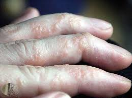 Itchy fluid filled blisters – hands and feet or dyshidrotic eczema ...
