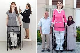 Dünya, en uzun boylu kadın Rümeysa Gelgi'yi konuşuyor Kronos News |  B