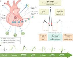 St Segment Elevation Myocardial Infarction Nature Reviews Disease