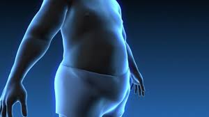 Study highlights stigma of weight loss surgery