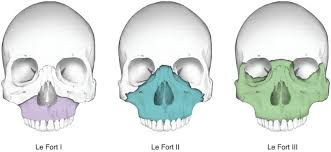 Le Fort Fracture Three Type Of Le Fort Fracture Of Maxilla Bone Anatomy Note