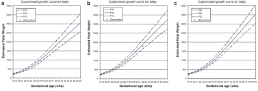 Babies Growth Curve Three Different Individually Customised Growth Curves A