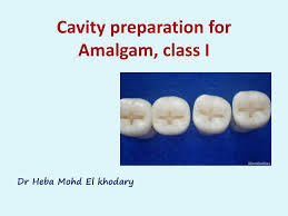 Class 1 Cavity Design Ppt Cavity Preparation For Amalgam Class I Powerpoint