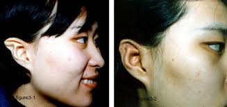 A New Method To Correct Stahls Ear Sciencedirect