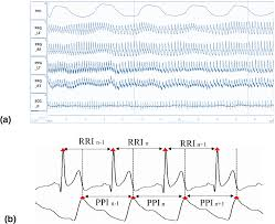 Ecg Rate Determination Chart Evaluation Of Coherence Between Ecg And Ppg Derived