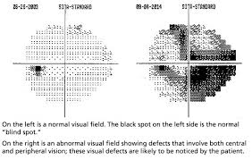 Visual Field Chart Interpretation What Is A Visual Field Test Glaucoma Research Foundation