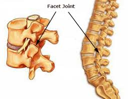 facet arthritis definition