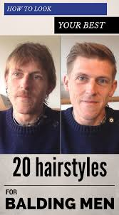 Hair Style For Balding Men how to look your best 20 hairstyles for balding men zoomzeeorg 1598 by wearticles.com