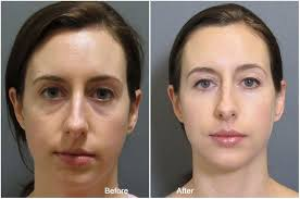 before after juvederm under eye before and after