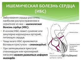 Презентация на тему ПРОФИЛАКТИКА СЕРДЕЧНО СОСУДИСТЫХ ЗАБОЛЕВАНИЙ  5 ишемическая