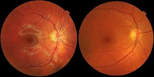view larger image age macular degeneration the most prehensive guide