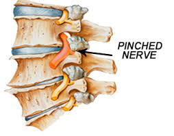 core strengthening exercises for lower back pain pdf
