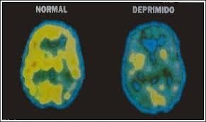 Resultat d'imatges de estudiso sobre la depresion