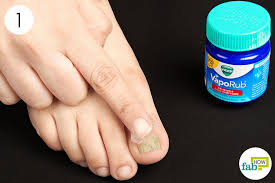 can vicks get rid of toenail fungus