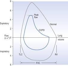 Pediatric Peak Flow Chart Peak Expiratory Flow An Overview Sciencedirect Topics
