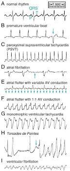 Heart Rhythms Made Easy Cardiac Nursing Medical Assistant