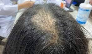 Bé gái 9 mắc chứng 'nghiện giật tóc' khiến đỉnh đầu trụi tóc