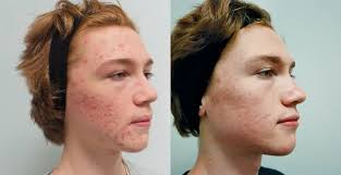 acne patient before and after treatment with infini excel v and spectra laser aesthetic