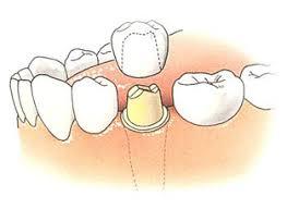 Afbeeldingsresultaat voor kroon bij tandarts