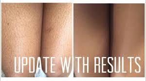 update ingrown hairs strawberry legs sugar waxing 2017