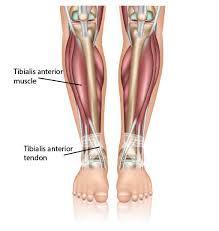 Ankle Tendonitis Anterior Tibial Tendonitis