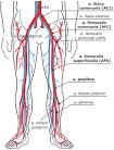 Arteria iliaca interna stenose