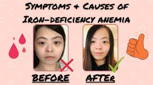 iron deficiency anemia symptoms hair