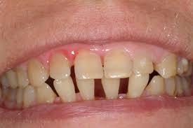 Smile Design Valrico Ceramic Crowns And Bridges St Petersburg Dental Clinic
