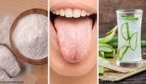 Beläggning på tungan orsak