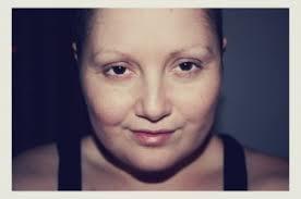 Gewichtszunahme nach chemotherapie
