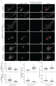 PLOS ONE: Characterization of mRNA-Cytoskeleton Interactions In Situ Using  FMTRIP and Proximity Ligation