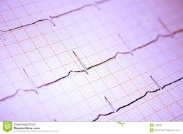 Heart Ecg Graph On Paper Stock Image Image Of Diagnosis 2790555