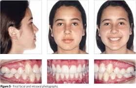 Angle Class Ii Division 2 Malocclusion With Pronounced Overbite