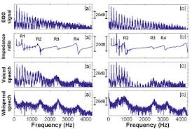 Voice Acoustics An Introduction To The Science Of Speech