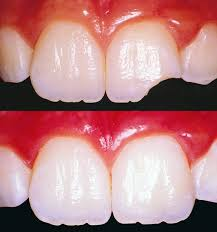 Dental Tooth Color Fillings And Bonding Doctor Specialist