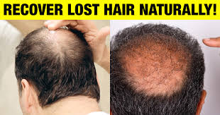 grow back your lost hair naturally