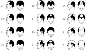 American Hair Loss Association Mens Hair Loss The