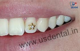teeth setting get a sparkling pearly smile with teeth jewelry this diwali us dental