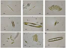 Microorganisms Taking A Look At Pond Water Organisms And More