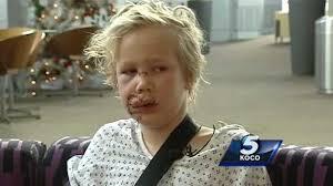 Pit bulls allegedly maul 10-year-old boy in Enid